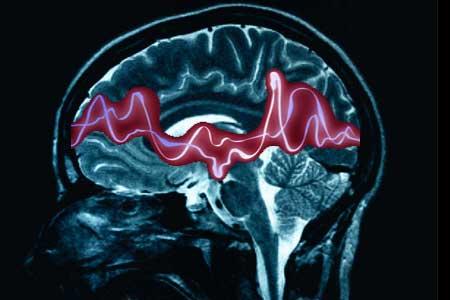 Medicamento eficaz contra la epilepsia: María Sitges Berrondo