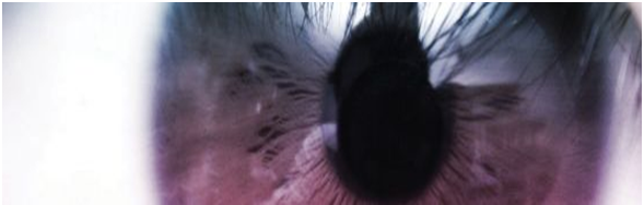 La vista, un sentido que no debe dejar de verse